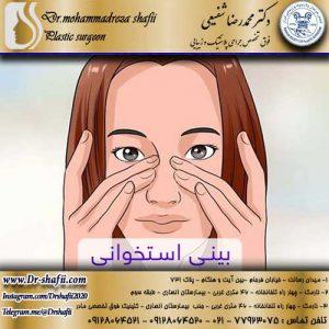 عمل جراحی بینی استخوانی