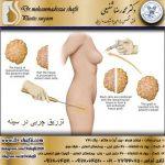 عمل تزریق چربی در سینه