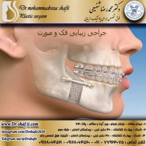 جراحی زیبایی فک و صورت