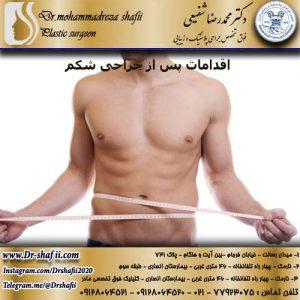 اقدامات پس از جراحی شكم