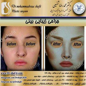 عمل جراحی زیبایی بینی