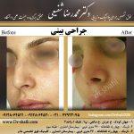جراحی بینی یا رینوپلاستی