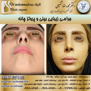 جراحی بینی و پروتز چانه