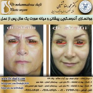 جوانسازی یپیشانی و صورت