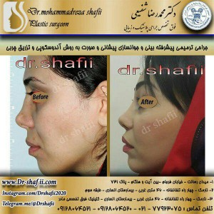 جراحی بینی و جوانسازی یپیشانی و صورت