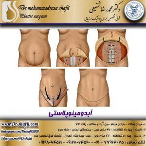جراحی آبدومینوپلاستی