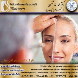 افراد مناسب جراحی بینی