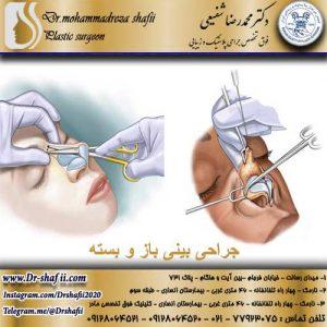 جراحی بینی باز و بسته