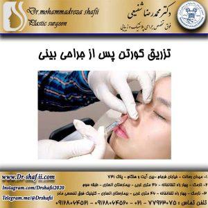 تزریق کورتن پس از جراحی بینی