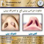 تفاوت جراحی بینی کج و انحراف بینی
