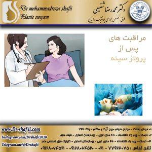 مراقبت های پس از پروتز سینه