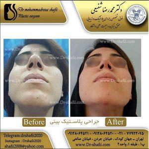 جراحی پلاستیک بینی 2