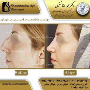 بهترین متخصص جراحی بینی در تهران