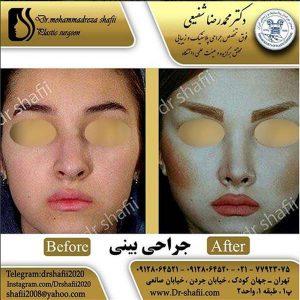 جراح بینی 3