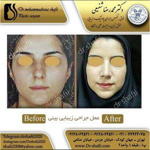 عمل جراحی زیبایی بینی 2