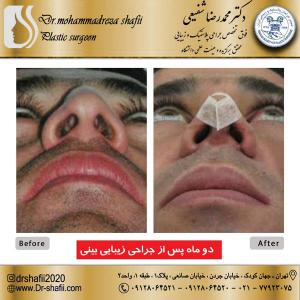 جراحی بینی 55